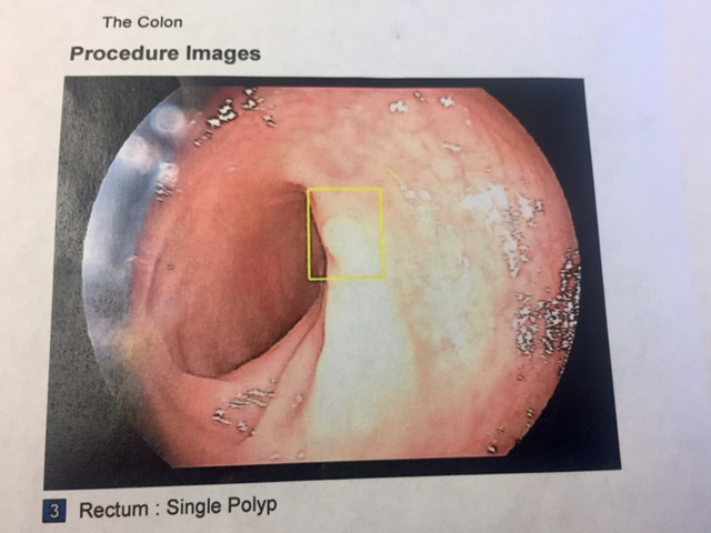 In fact, scientists have established that most colon and rectal cancers  develop from polyps. But by identifying and removing polyps during a  colonoscopy, ...
